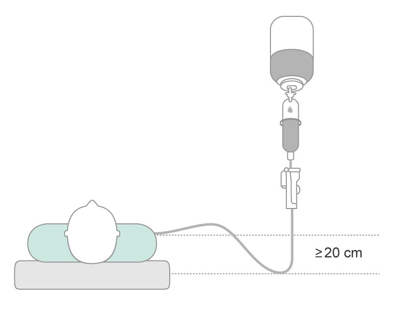 Infusion regimen with the usage of a siphon greater than 20 cm.