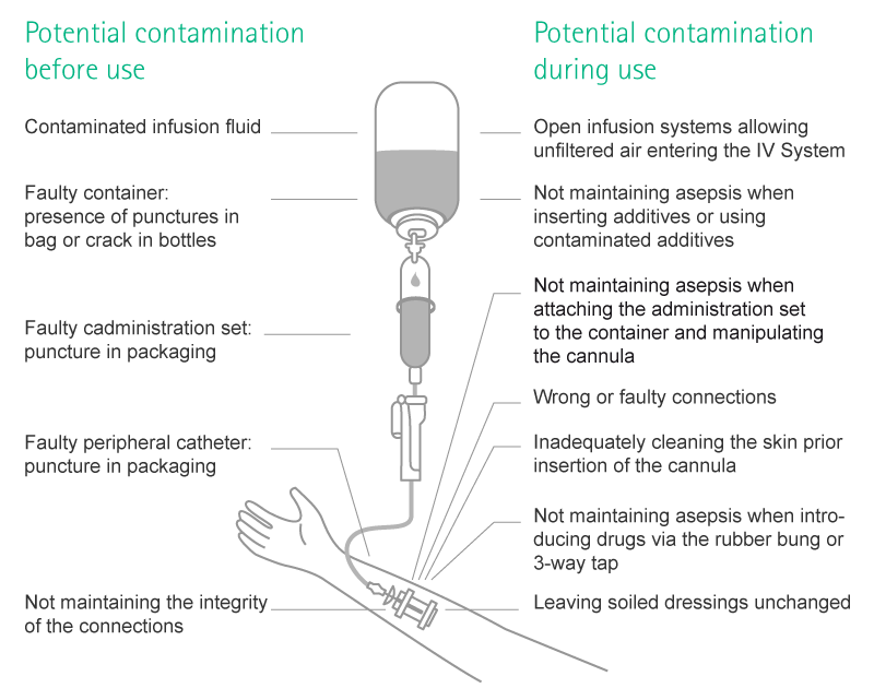 what is the most common route of contamination