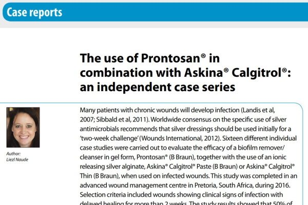 Naude L. The use of Prontosan® in combination of Askina® Calgitrol®: an independent case series. Wounds International, 2018 ; 9(1): 44-48.  Available at  (accessed 16.03.2018).